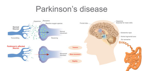 the four major symptoms of parkinsons disease Pinion premotor and nonmotor features of parkinson's disease jennifer g goldmana and ron postumab  although parkinson's disease patients experience a wide range of nonmotor symptoms throughout the disease course, studies demonstrate that.