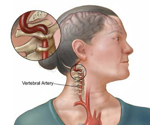 Cervical Vertigo